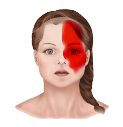 ayurvedic treatment in kerala for migraine headaches